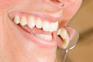 Your periodontist in Savannah for high-quality care you deserve.